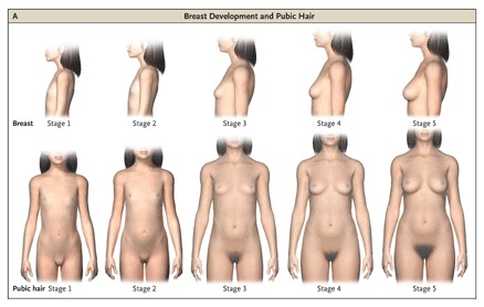 The onset of puberty is affected by many factors like race, early maternal ...