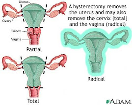 Hysterectomy types