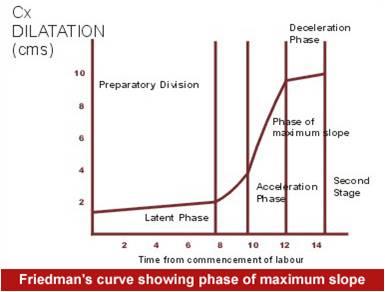 Friedman's partogram
