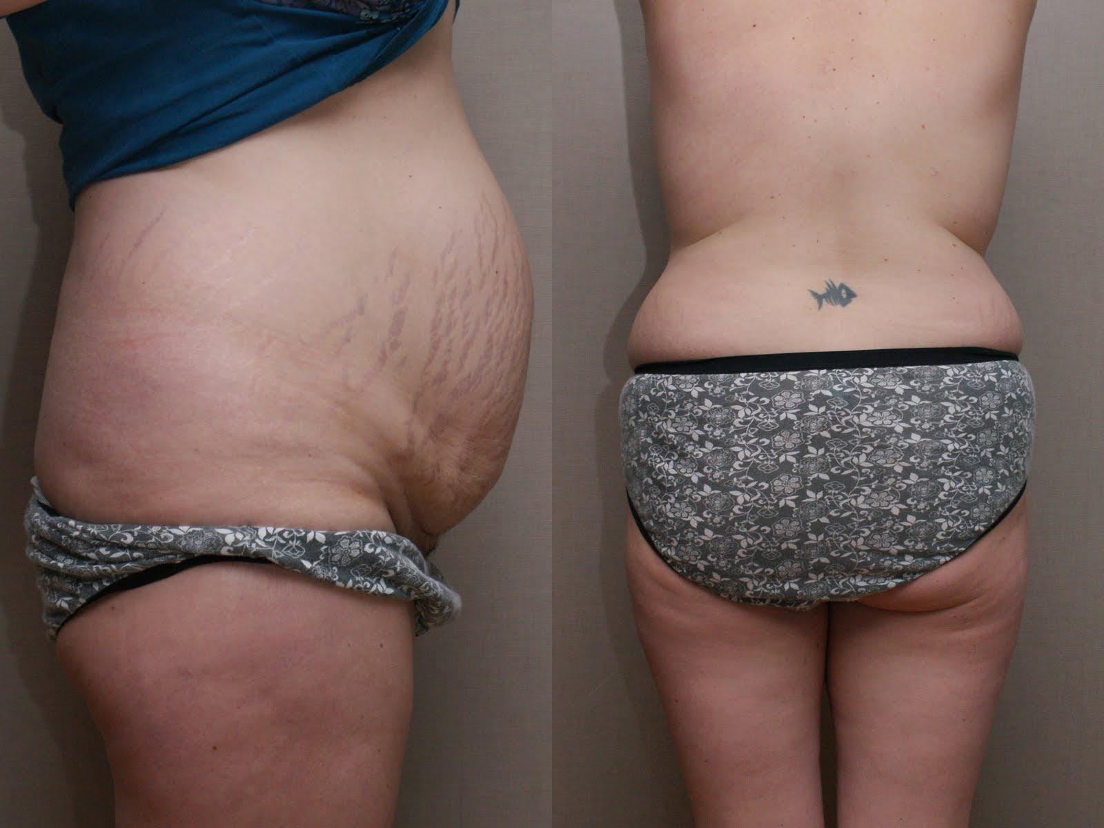 bristningar på magen övervikt