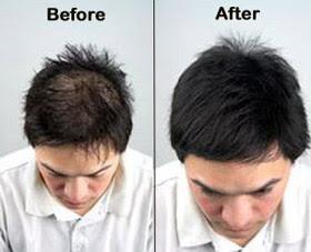 Saç Mezoterapisi Nedir-Saç Mezoterapisi Yaptıranlar Fiyatları-Saç Mezoterapisinin Faydaları