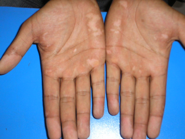 Itchy Palms: Common Causes and Treatments of Itchy Palms