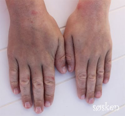 Sprukken hud på hendene