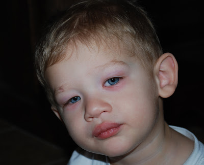 Well my poor little man contracted Pink Eye on both eyes and to top it