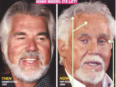 plastic surgery gone bad of Kenny Rogers