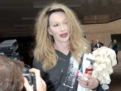 3: Pete Burns Lips