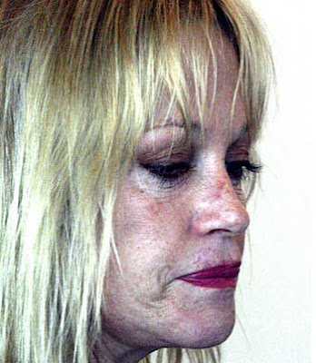 plastic surgery gone bad of Melanie Griffith