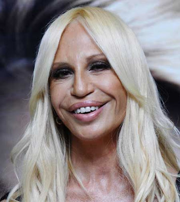 Donatella Versace Lips, facelift