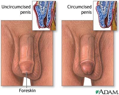 Cut penis uncut vs