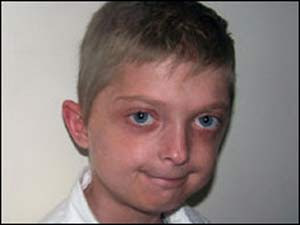 Menino de 11 anos envelhece 5 vezes mais rápido devido à doença