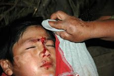 Niños mapuche heridos