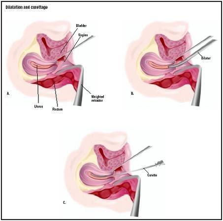 a look at the surgical process of dilation and curettage dc and its use in abortion What is an induced abortion  suction curettage is the most common type of abortion  how is a second-trimester surgical abortion performed dilation and.