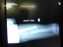 fracture consolidée en position inadéquate
