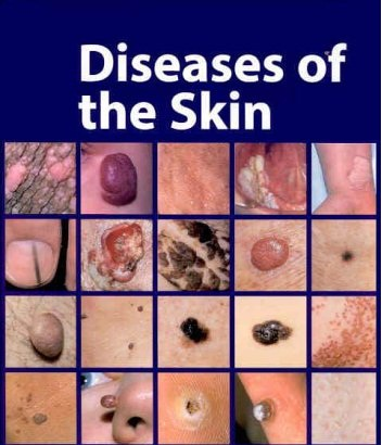 51GPEKWG4EL Psoriasis Increased Epidermal Cell Proliferation