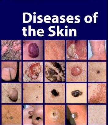 Skin Problems & Treatments: Symptoms & Types - WebMD