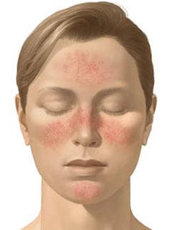 Cure photo facial burn