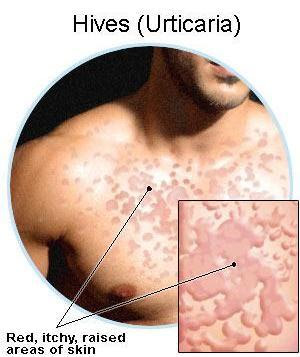 Treatment for Hives in Children : Cure For Hives And Itching