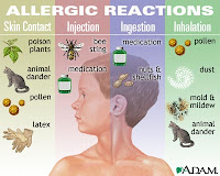 Allergic Reactions To Injection, Ingestion, Skin Contact, And Inhalation