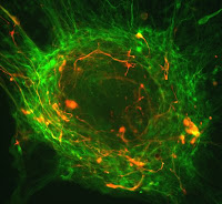 Human embryonic stem cells differentiating into neurons. Photo by the courtesy of CIRM.