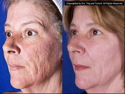 Cost of laser resurfacing for acne scars