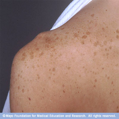 Gray Skin: 9 Causes, Photos, & Treatments - Healthline