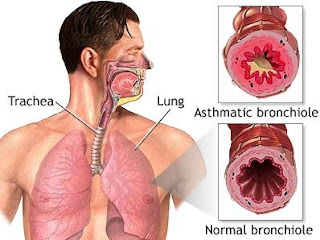 ���� ���� ����� ������� Bronchial-Asthma.jpg