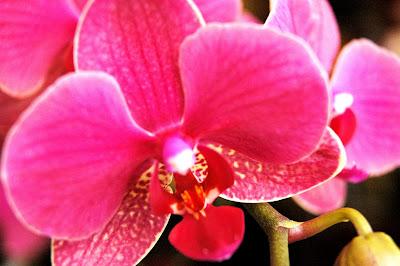 Rosa) ¿De que color es tu orquidea?