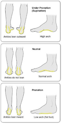 help for plantar fasciitis