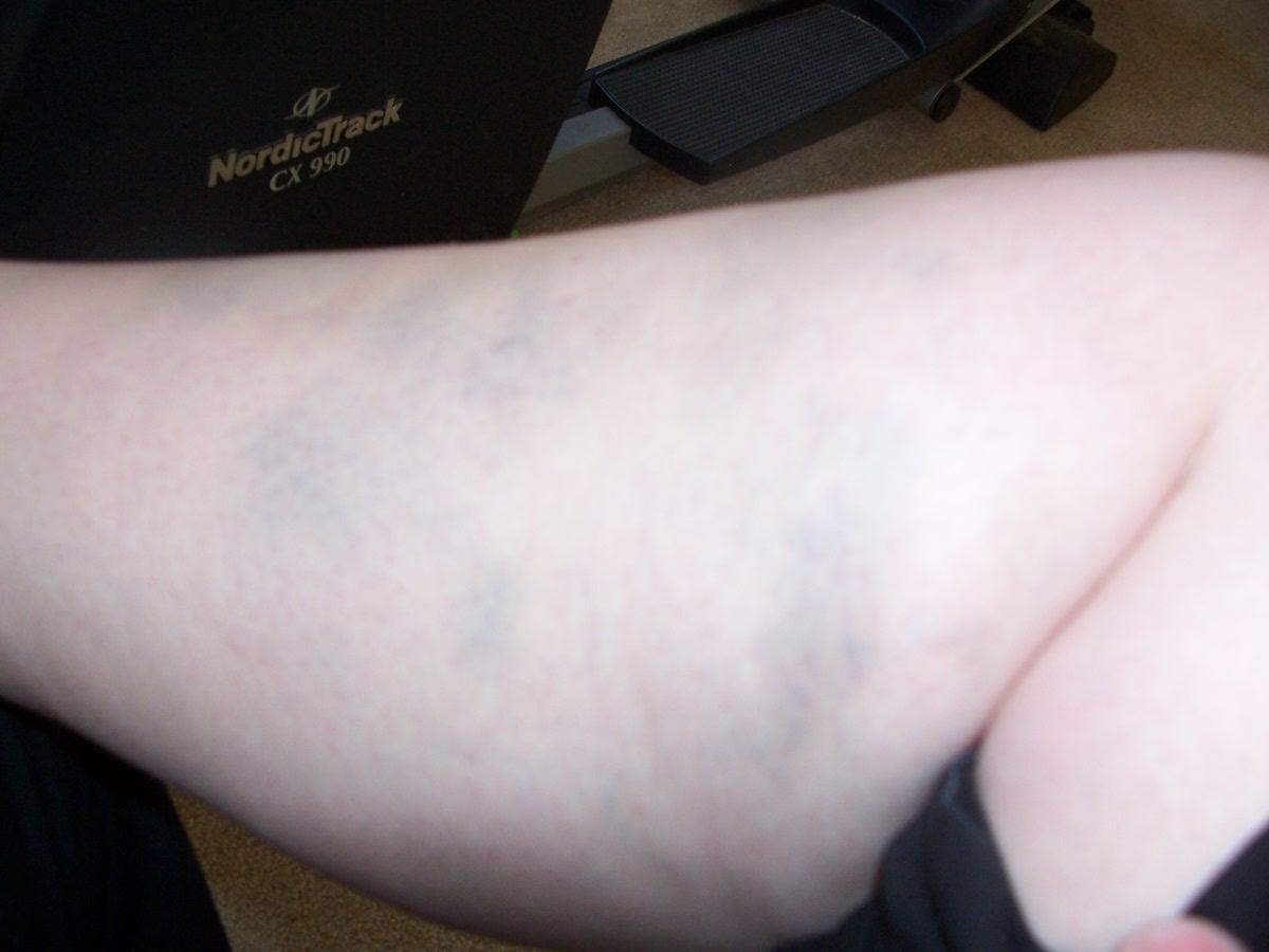 [bruises+002.JPG]