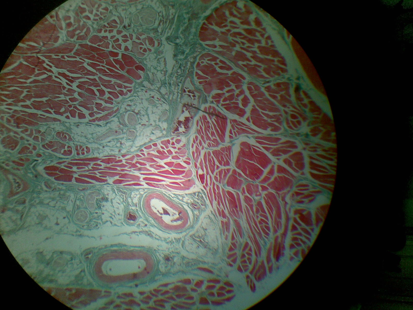 Anatomía Patológica: Tejido Muscular Estriado (Lengua)