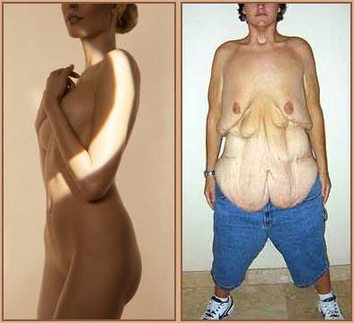 lös hud vid viktnedgång