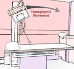 MOVEMENTS OF THE LINEAR TOMOGRAPHY MACHINES