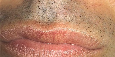 Fordyce's spots on the lips