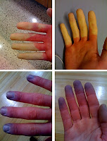 bluish skin discoloration - Raynaud's symdrome
