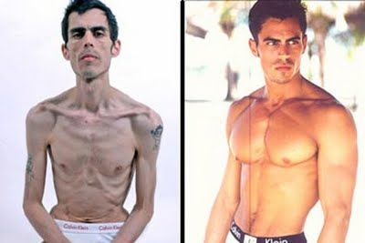 medical treatment many effected faces of male bulimia