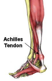 IMAGE Graphic of an inflamed Achilles tendon. IMAGE