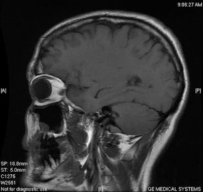 Image of a slice of the author's brain, this section shows fangs rather than teeth, due to the angle of the image 'slice'.