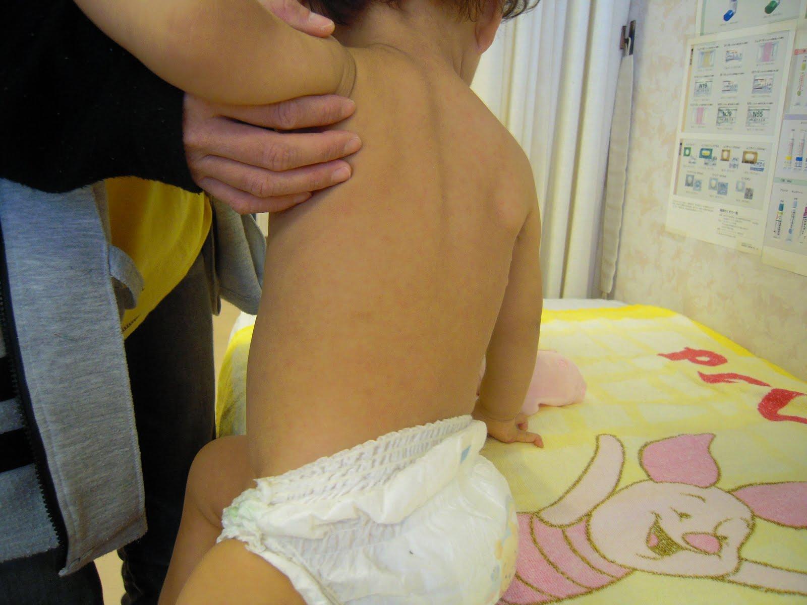 Kami Ube Pediatric Clinic Roseola Exanthema Subitum