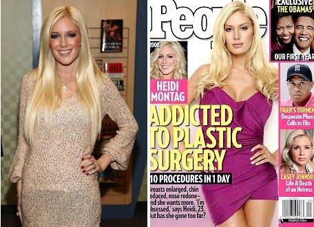 heidi montag before and after 2010. Heidi Montag, Before and After