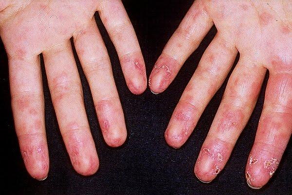 para la gota calor o frio remedio para el acido urico alto mahou celiacos es bueno para el acido urico