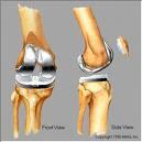 Bionic-Knee