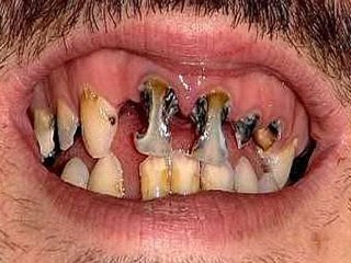 CRAZY PICS  The Ugliest Teeth In The World