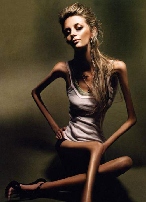Famous People with Anorexia Nervosa - HRF