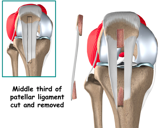 Physio questions knee injury acl part ii disadvantage higher incidence of knee pain post op which may persist for years ccuart Choice Image