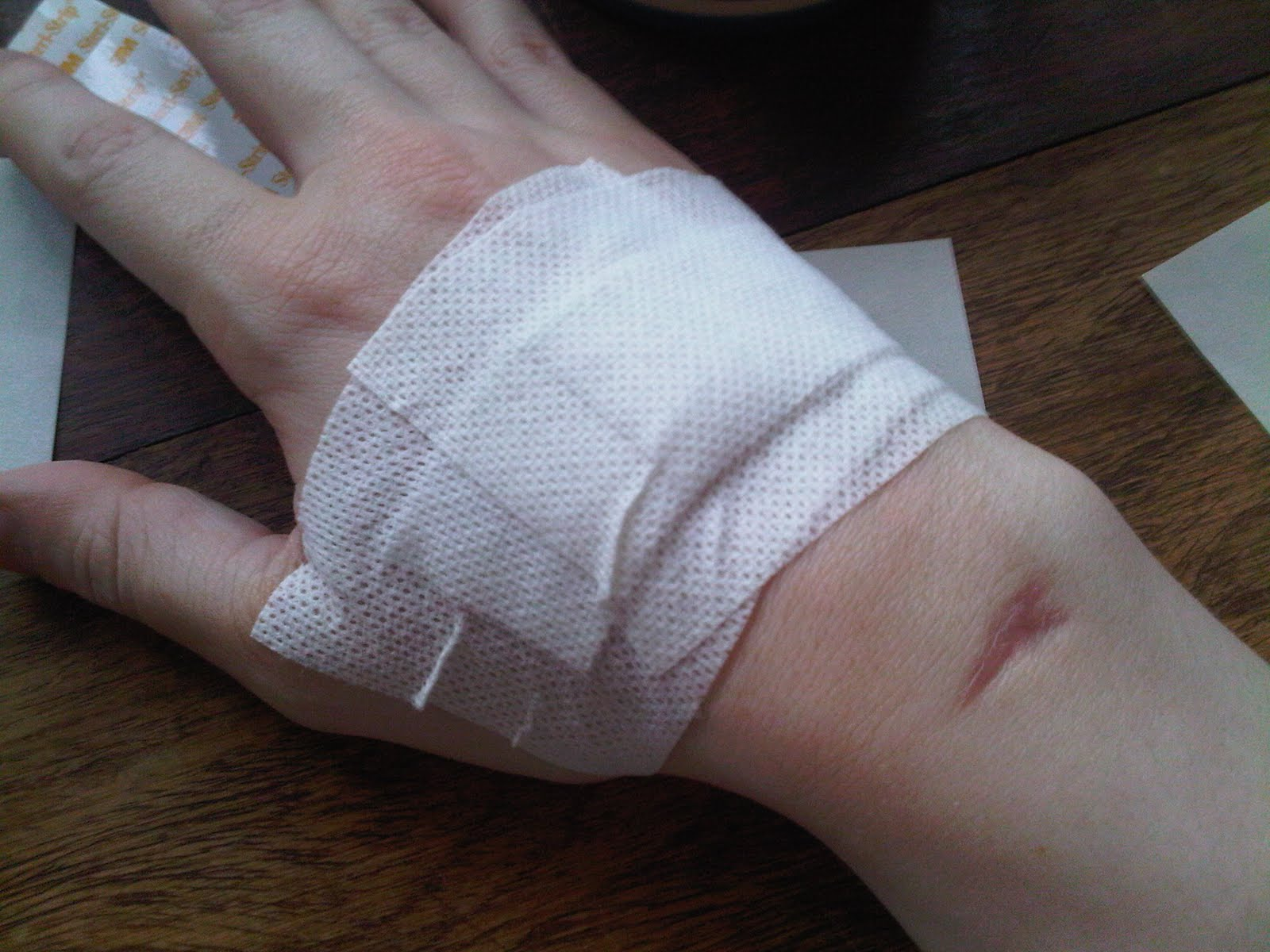 and here's the hand all bandaged up with some totally unnecessary ...