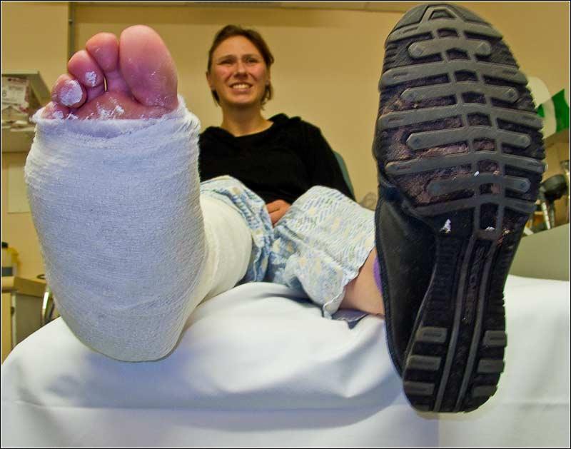 Her Broken Ankle Cast