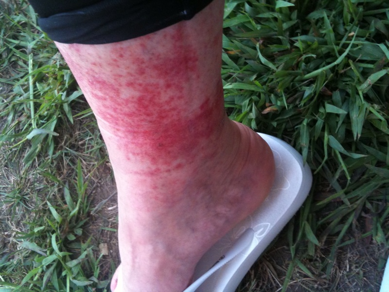 heat rashes pictures. heat rashes in adults. heat