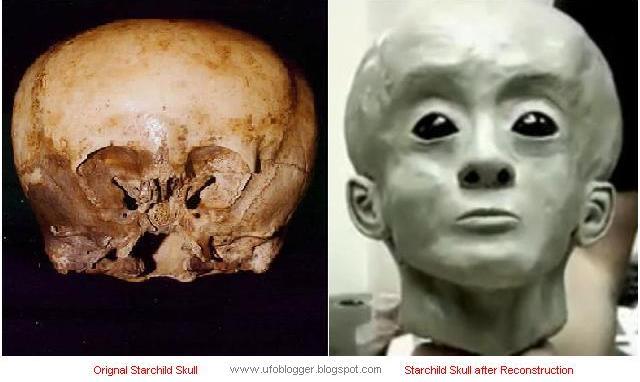 Confirman ADN Extraterrestre en Cráneo de Niño de Hace 900 Años