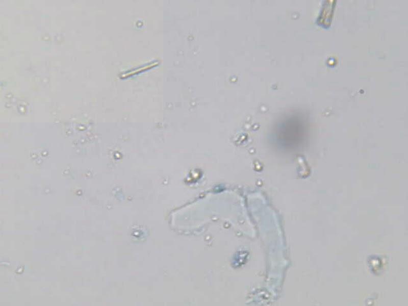 Cellule epiteliali squamose nei cioni di urine si presentano piatte