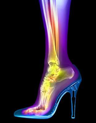 High Heel Foot X-ray